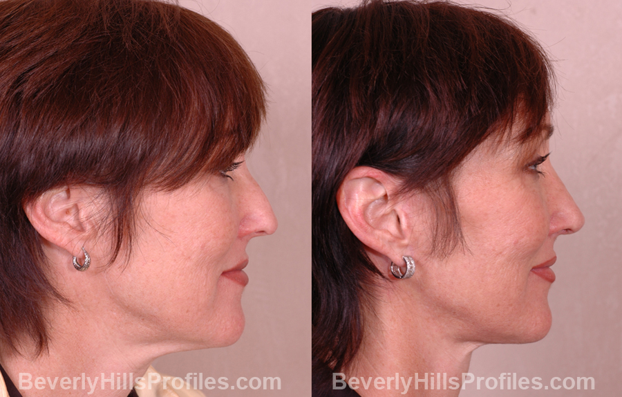 photos before and after Necklift - right side view