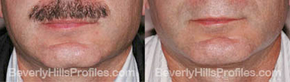pics before and after Necklift - front view