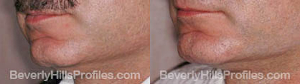 pics before and after Necklift - left oblique view