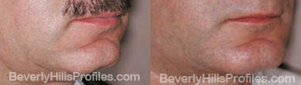 pics before and after Necklift - oblique view