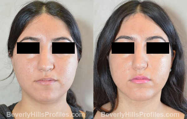 photos before and after Necklift Procedures - front view