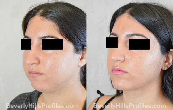 photos before and after Necklift Procedures - oblique view