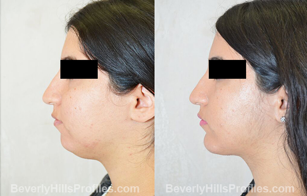 photos before and after Necklift Procedures - left side view