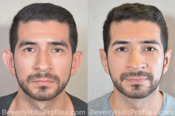 photos male patient before and after Otoplasty - front view