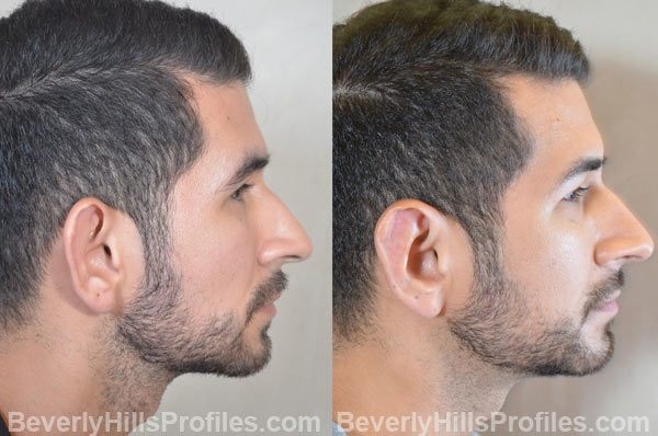 photos male patient before and after Otoplasty - right side view