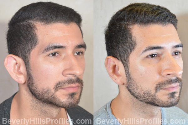photos male patient before and after Otoplasty - oblique view