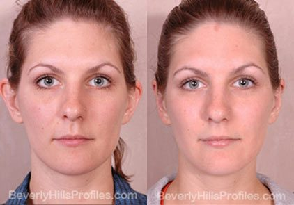 photos female patient before and after Otoplasty - front view