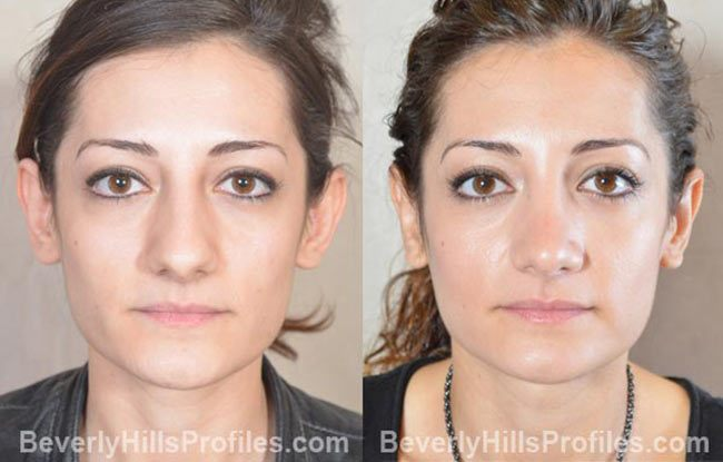 front photos - Female before and after Otoplasty