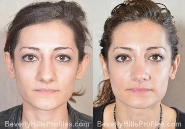 female patient before and after Otoplasty - front view