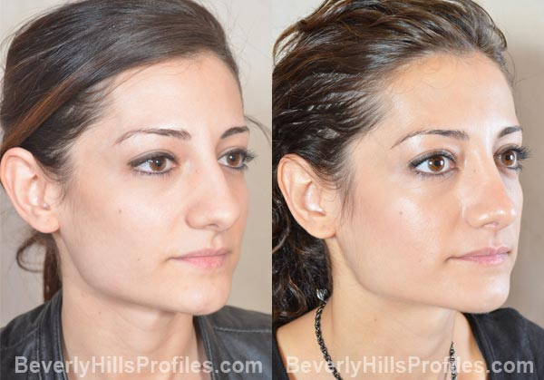 female patient before and after Otoplasty - oblique view