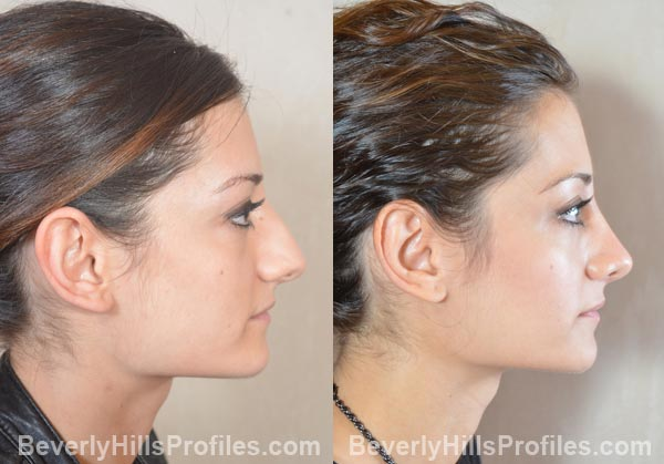 female patient before and after Otoplasty - right side view