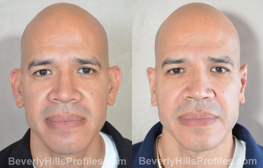 male patient before and after Otoplasty Procedures - front view