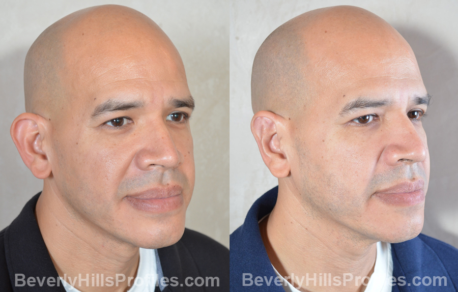 male patient before and after Otoplasty Procedures - oblique view