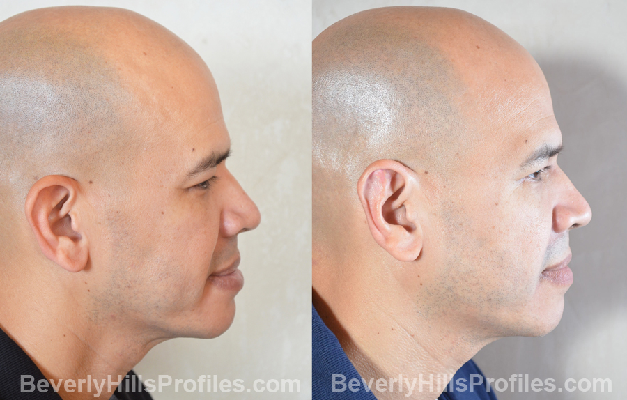 male patient before and after Otoplasty Procedures - right side view