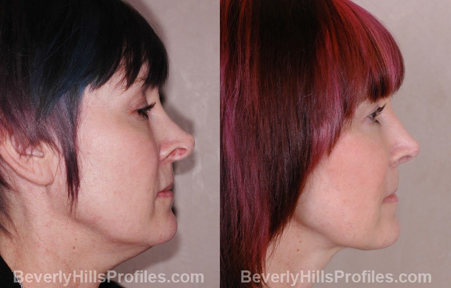 Revision Rhinoplasty Before and After Photos - female, right side view, patient 1
