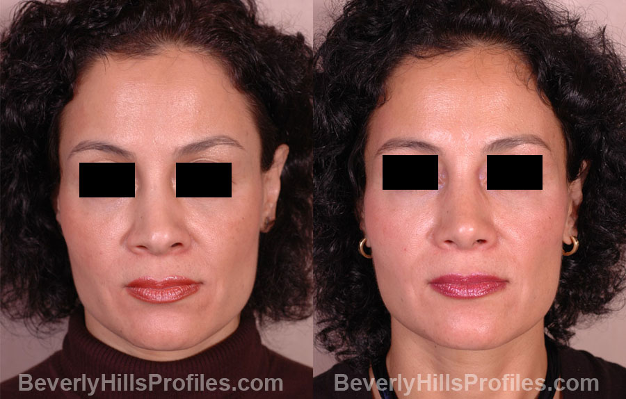 Female before and after Revision Rhinoplasty - front view