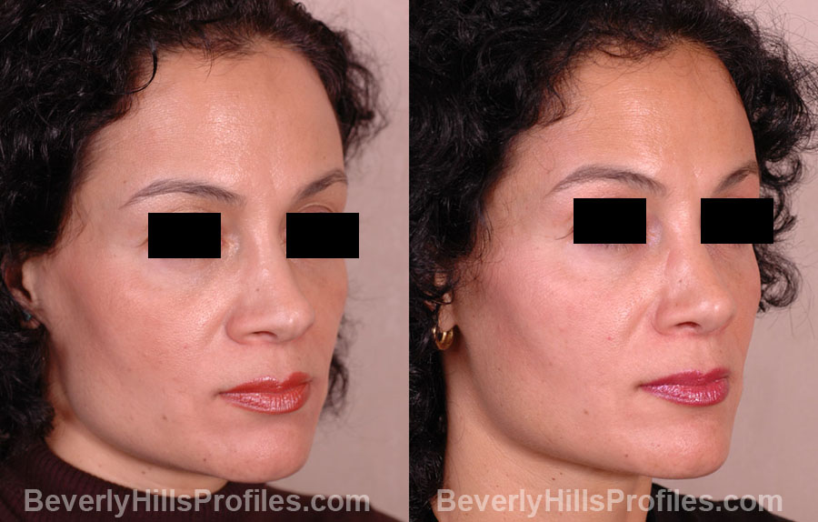 Female before and after Revision Rhinoplasty - oblique view