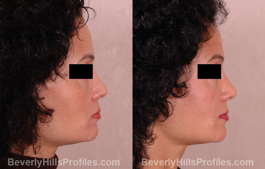 Female before and after Revision Rhinoplasty - side view