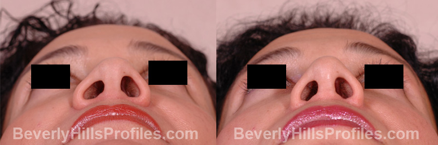 Female before and after Revision Rhinoplasty - underside view