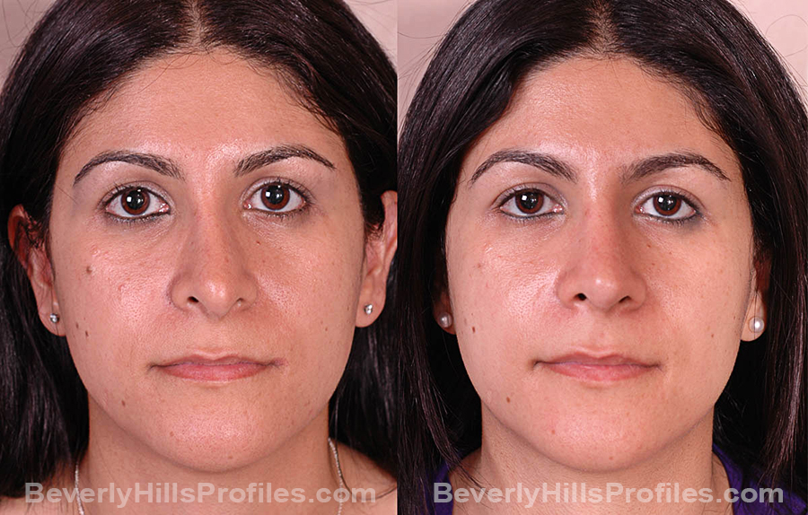 Photos Female before and after Revision Rhinoplasty, front view