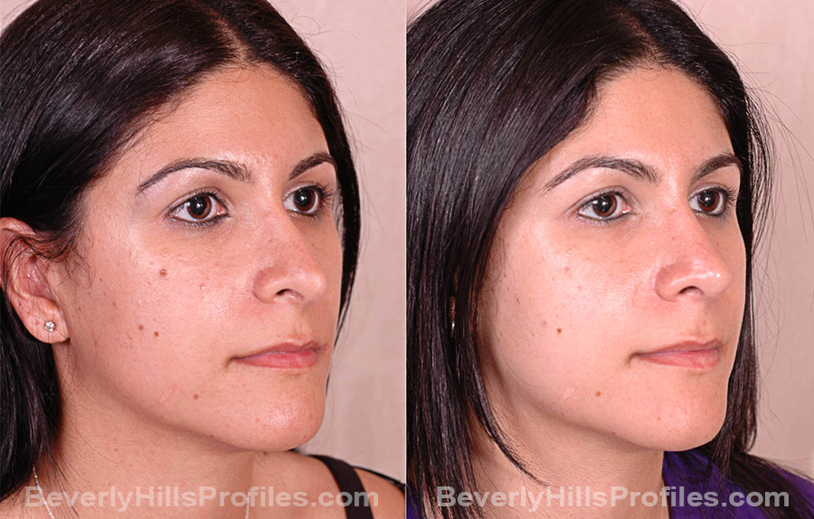 Photos Female before and after Revision Rhinoplasty, oblique view