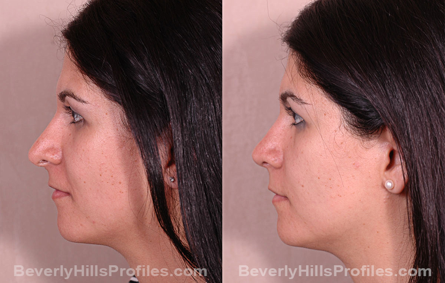 Photos Female before and after Revision Rhinoplasty, side view