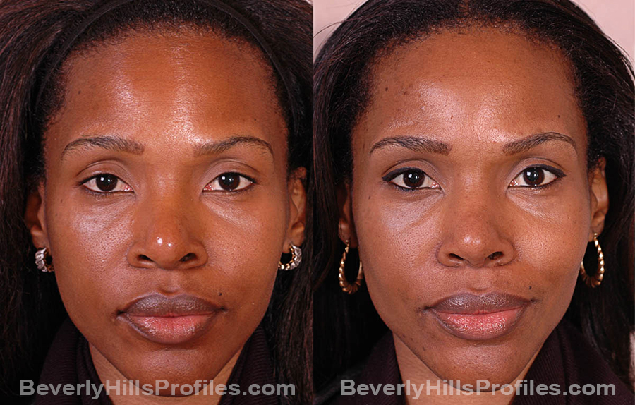 Images Female before and after Revision Rhinoplasty, front view