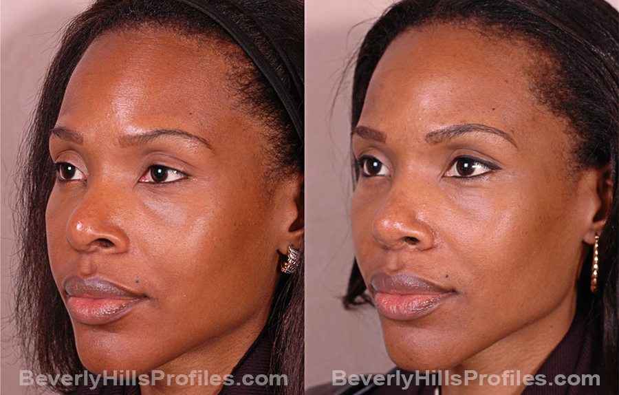 Images Female before and after Revision Rhinoplasty, oblique view