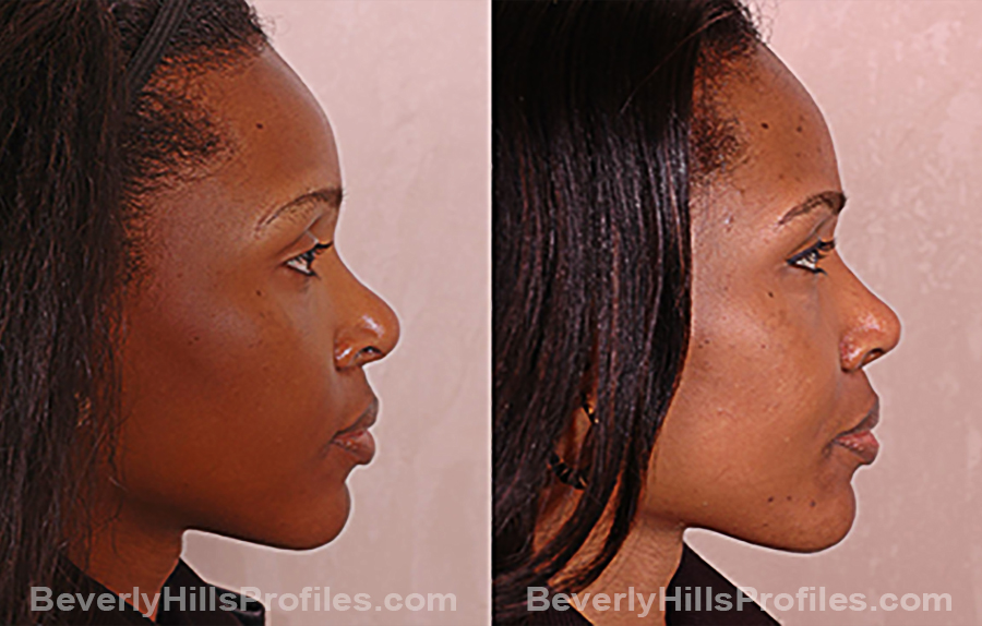 Images Female before and after Revision Rhinoplasty, side view