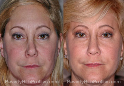 Images patient before and after Revision Rhinoplasty, front view