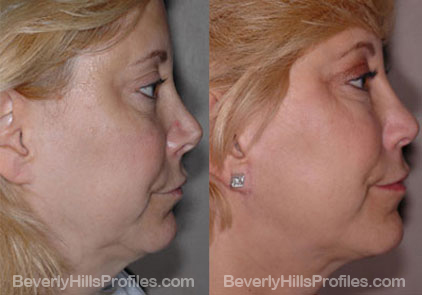 Images patient before and after Revision Rhinoplasty, side view