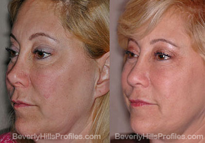 Images patient before and after Revision Rhinoplasty, oblique view