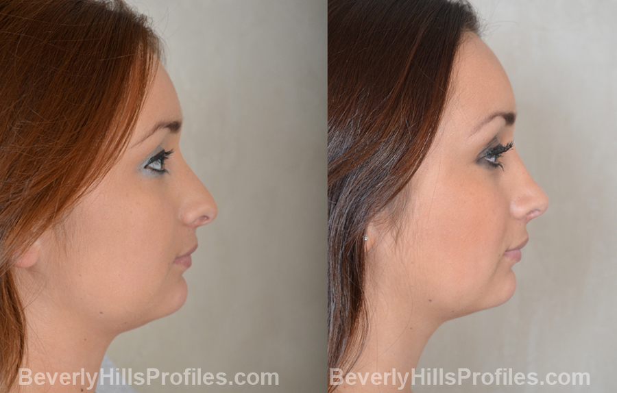 Images Female patient before and after Revision Rhinoplasty - side view