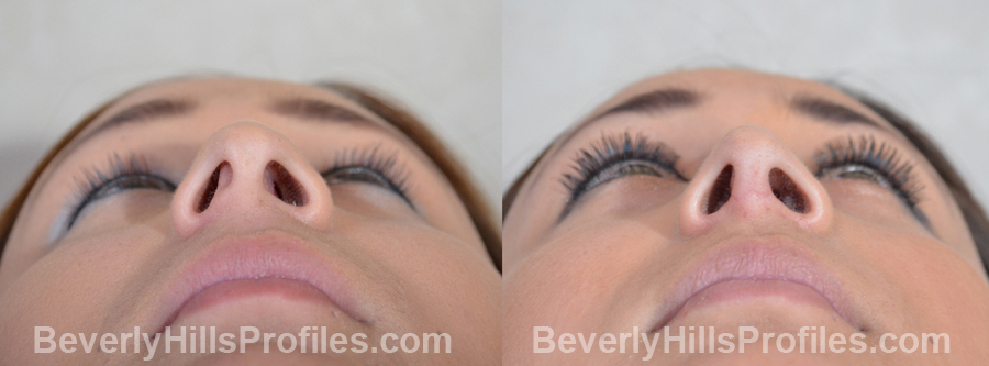 Images Female patient before and after Revision Rhinoplasty - underside view