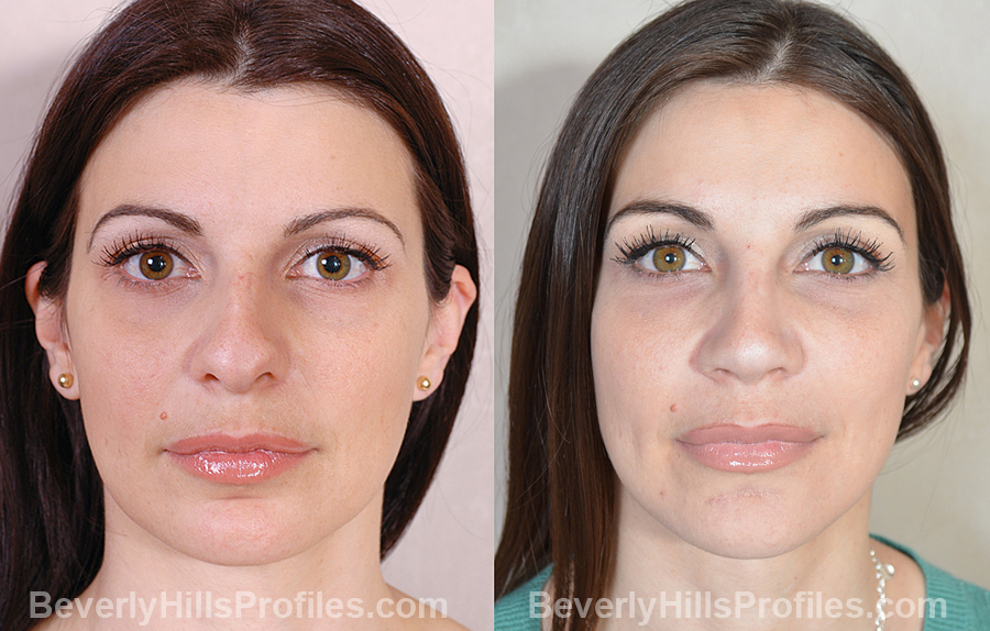 Images Female patient before and after Revision Nose Surgery - front view