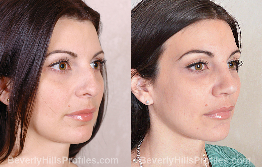 Images Female patient before and after Revision Nose Surgery - oblique view