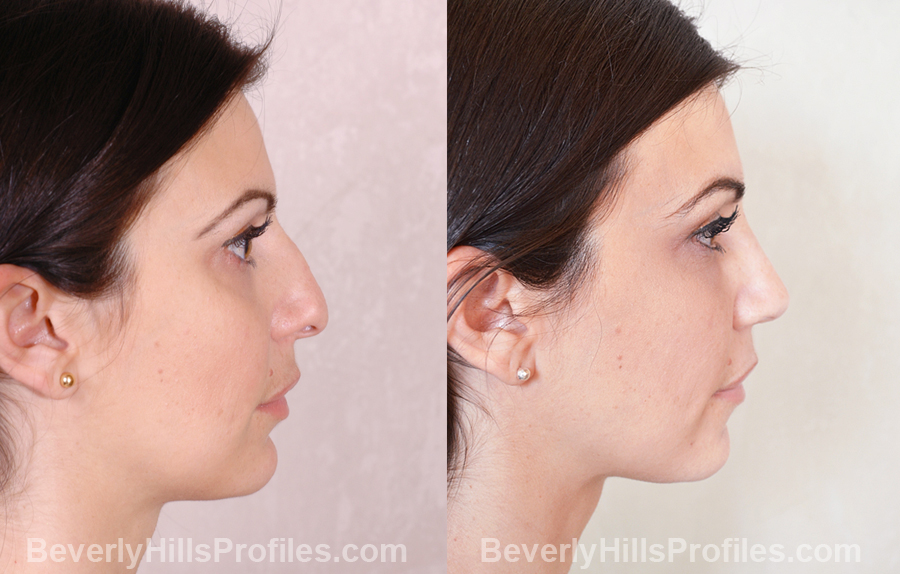 Images Female patient before and after Revision Nose Surgery - side view