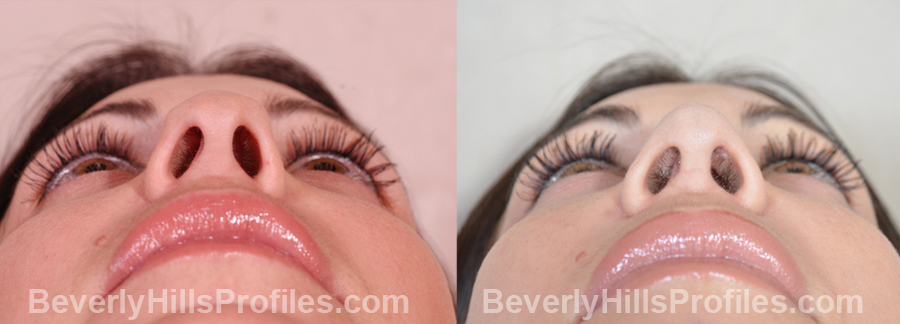 Images Female patient before and after Revision Nose Surgery - underside view