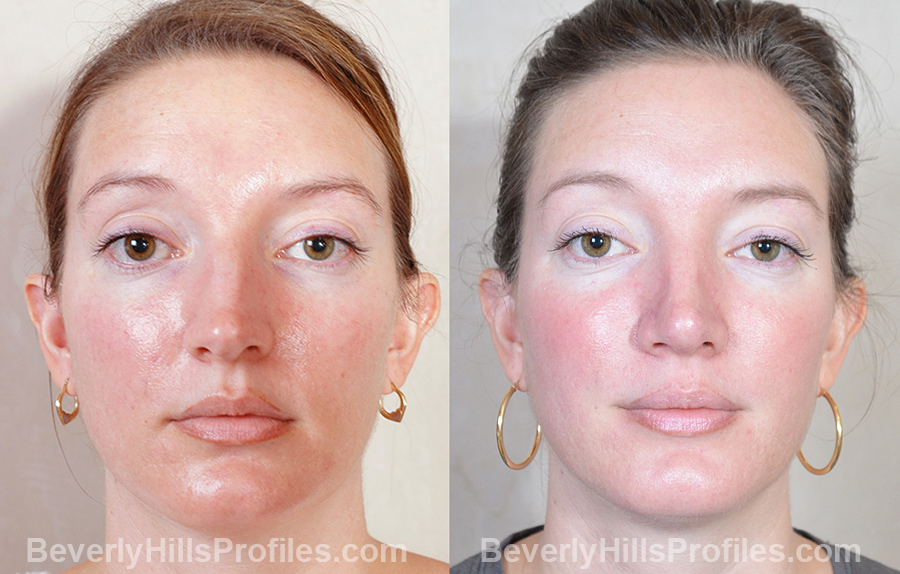 Female patient before and after Revision Nose Surgery - front view