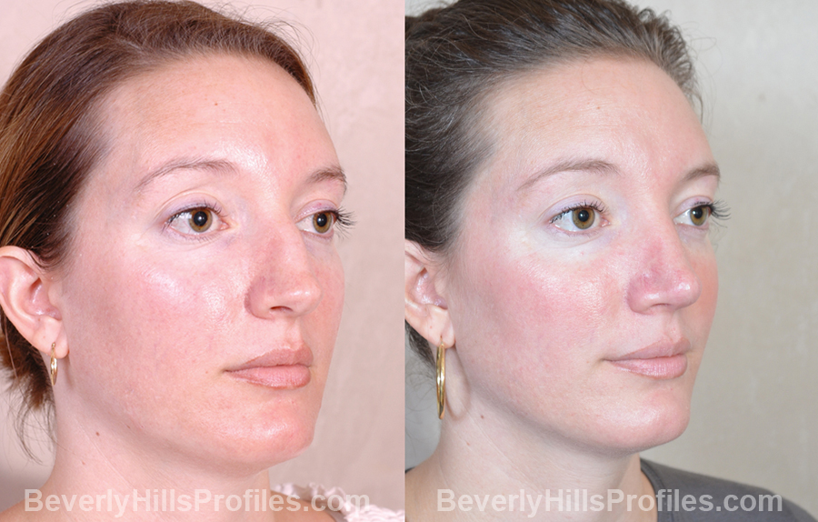 Female patient before and after Revision Nose Surgery - oblique view