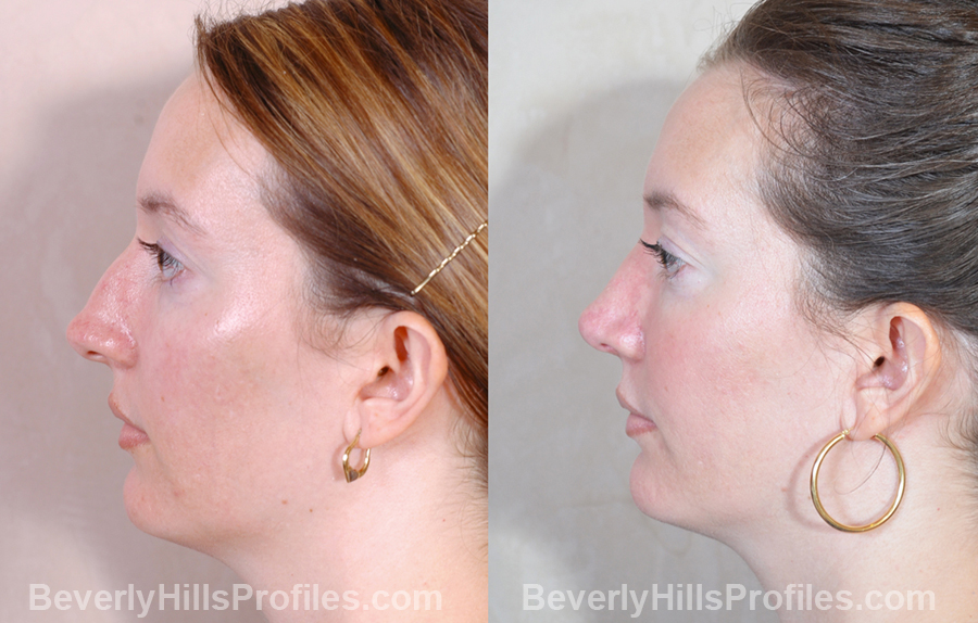 Female patient before and after Revision Nose Surgery - side view
