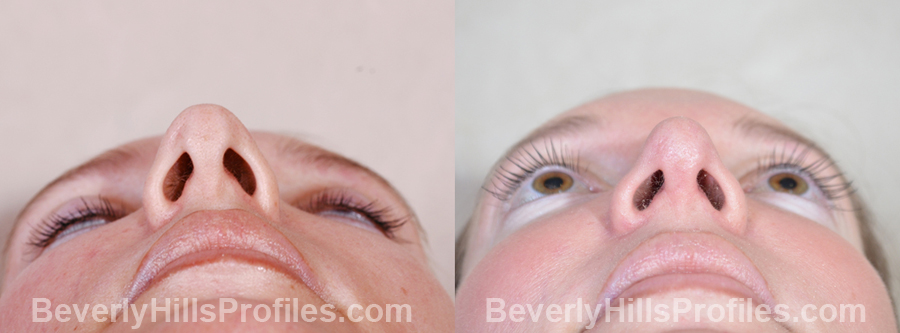 Female patient before and after Revision Nose Surgery - underside view