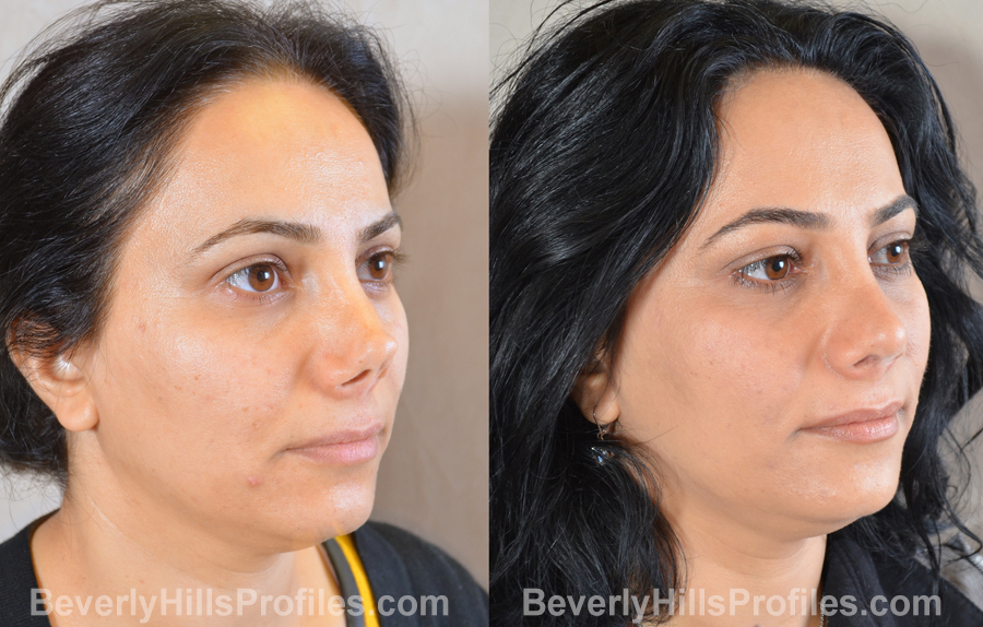 Female patient before and after Revision Rhinoplasty - oblique view