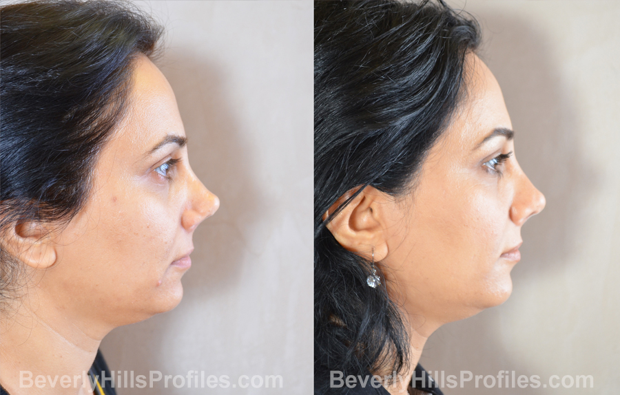 Female patient before and after Revision Rhinoplasty - side view