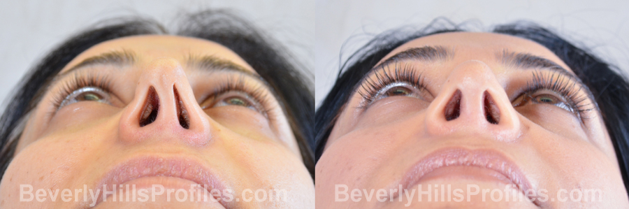 Female patient before and after Revision Rhinoplasty - underside view