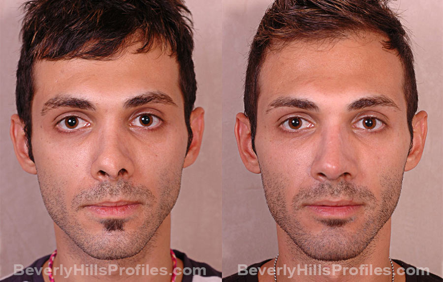 Male patient before and after Revision Rhinoplasty, front view