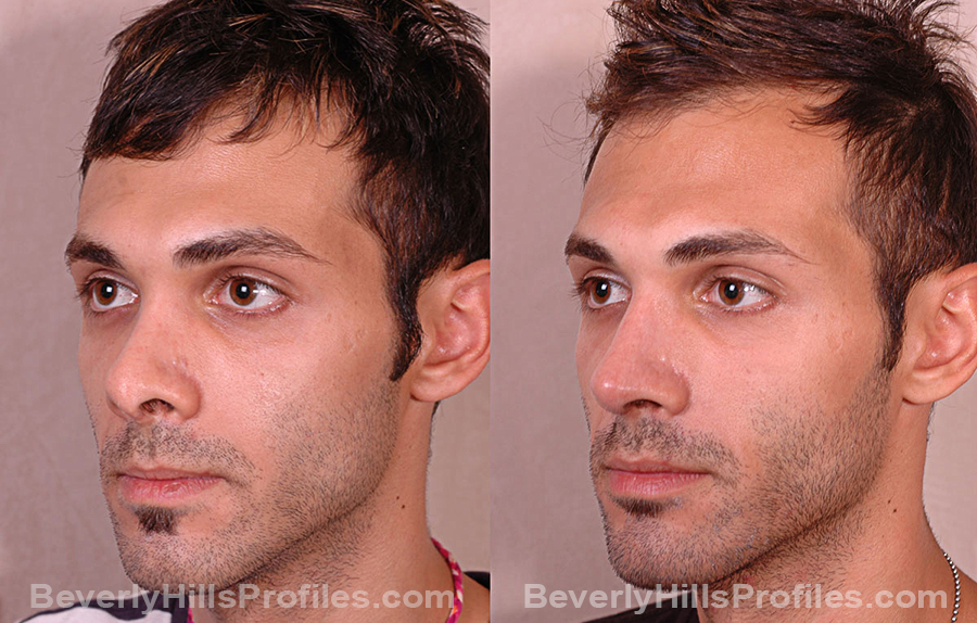 Male before and after Revision Rhinoplasty, oblique view