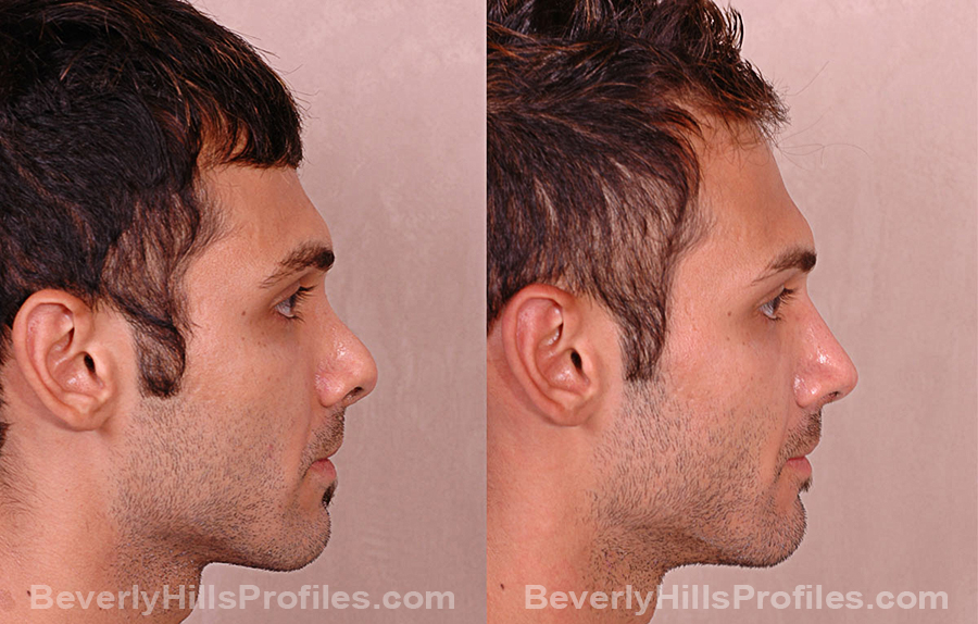 Revision Rhinoplasty Before and After Photo Gallery - male, side view