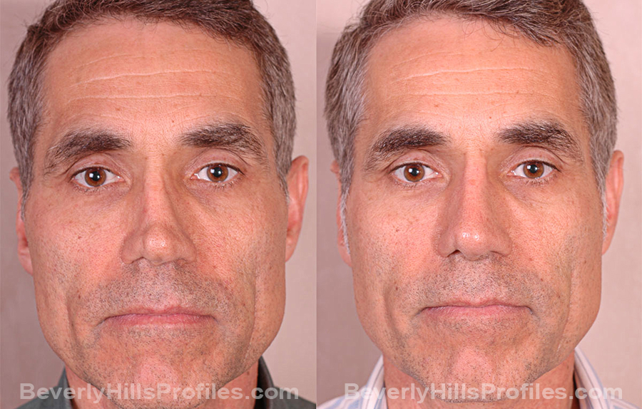 front view Male before and after Revision Rhinoplasty