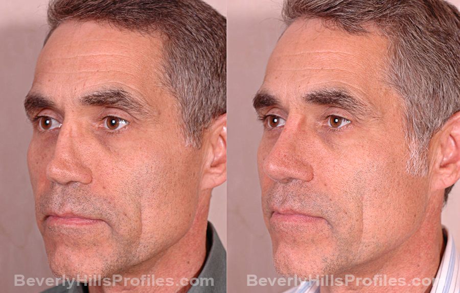 oblique view Male before and after Revision Rhinoplasty